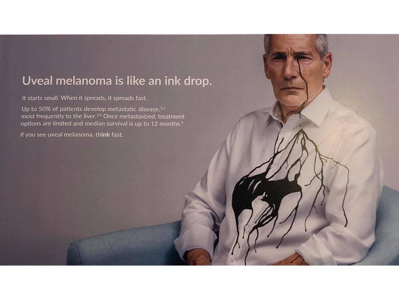 MELANOMA UVEAL: nuevos tratamientos para uno de los tipos más agresivos de melanoma!
